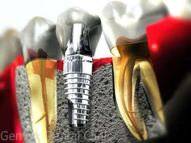 Имплантация зубов в долгопрудном